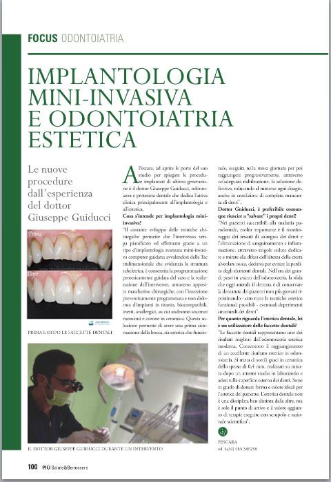 Intervista Sulla Rivista Piu Salute E Benessere Sole 24 Ore Dentista Pescara Studio Dentistico Guiducci